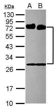 CD73 Antibody (PA5-29750) in Western Blot