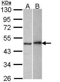 Neuroserpin Antibody (PA5-29751) in Western Blot