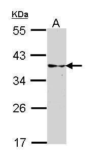 CRALBP Antibody (PA5-29759) in Western Blot
