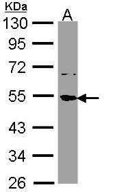 SSB Antibody (PA5-29763) in Western Blot