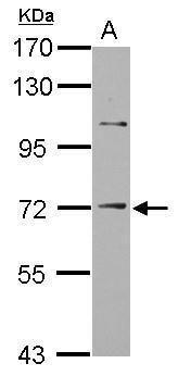 ST14 Antibody (PA5-29764) in Western Blot