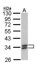 SULT1A1 Antibody (PA5-29766) in Western Blot