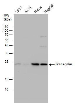 TAGLN Antibody (PA5-29767) in Western Blot