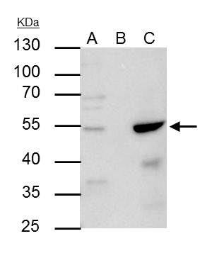 AP2 alpha Antibody (PA5-29769) in Immunoprecipitation