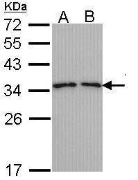 TPM3 Antibody (PA5-29770) in Western Blot