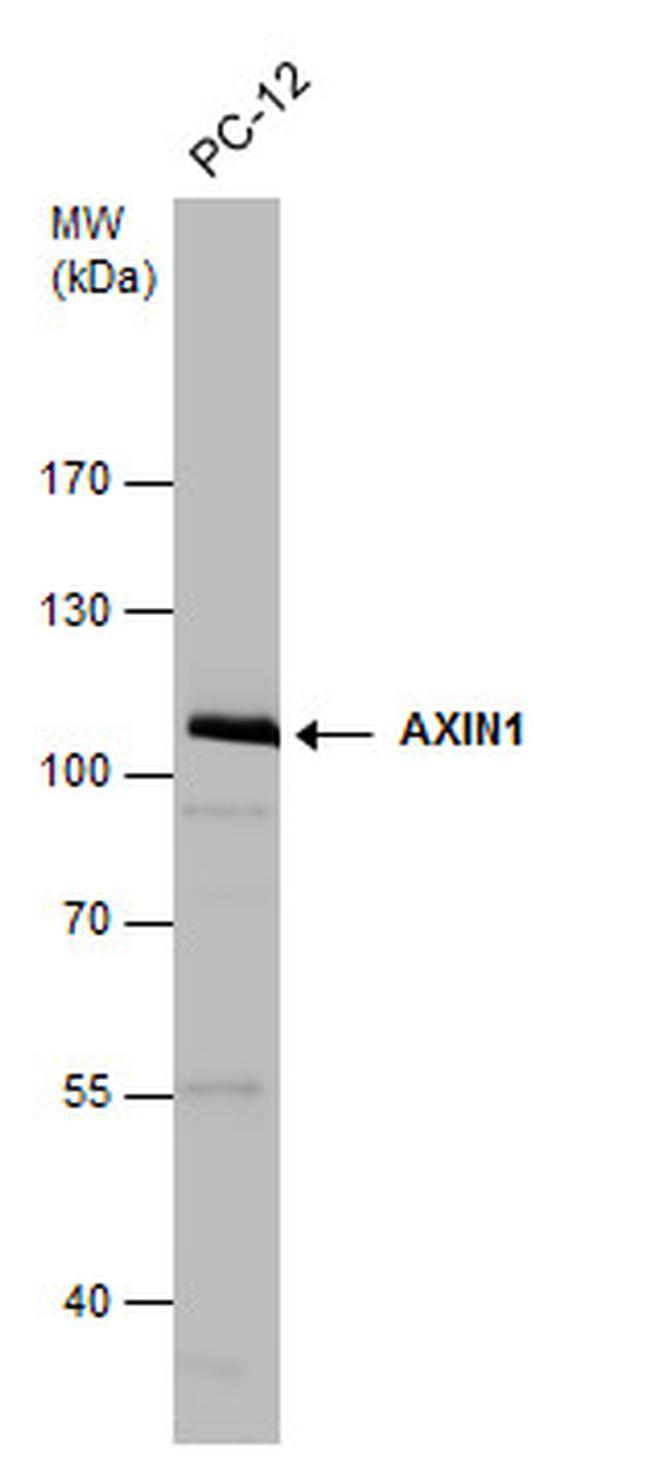 AXIN1 Antibody (PA5-29776) in Western Blot
