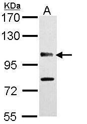 CYLD Antibody (PA5-29795) in Western Blot