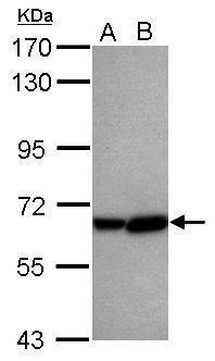 CYP2C8 Antibody (PA5-29796) in Western Blot