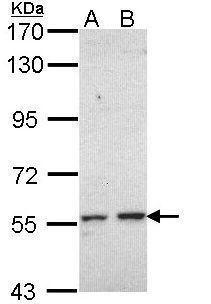 CYP17A1 Antibody (PA5-29798)