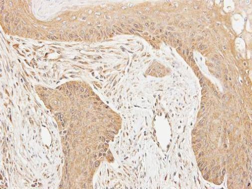 Cortactin Antibody (PA5-29799) in Immunohistochemistry (Paraffin)
