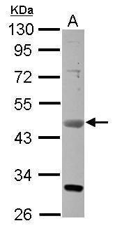 VEGFD Antibody (PA5-29806) in Western Blot
