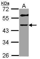 GALT Antibody (PA5-29808) in Western Blot