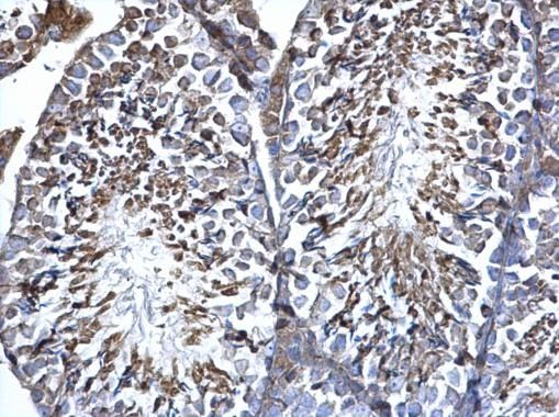 ERp57 Antibody (PA5-29810) in Immunohistochemistry (Paraffin)