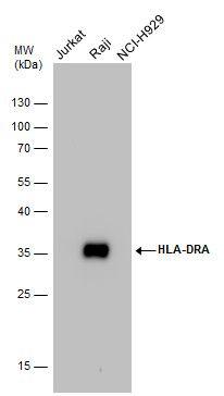 HLA-DR Antibody (PA5-29814) in Western Blot