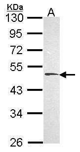 HYAL1 Antibody (PA5-29816) in Western Blot