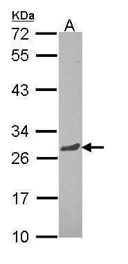 RGS13 Antibody (PA5-29842)