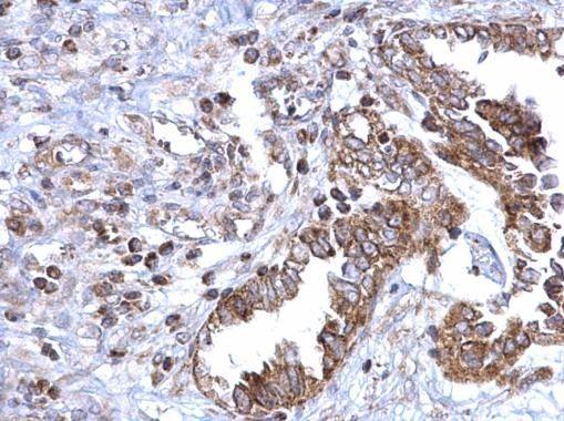 SDHB Antibody (PA5-29843) in Immunohistochemistry (Paraffin)