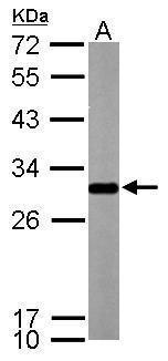 SDHB Antibody (PA5-29843) in Western Blot
