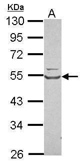 WARS Antibody (PA5-29849) in Western Blot