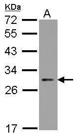 ARC Antibody (PA5-29861) in Western Blot