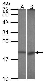 Bcl-B Antibody (PA5-29867) in Western Blot
