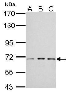 IGF2BP2 Antibody (PA5-29869) in Western Blot