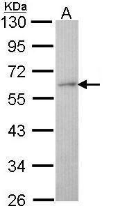 Coronin 1A Antibody (PA5-29875) in Western Blot