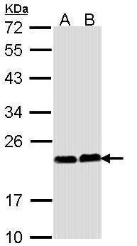 CHP1 Antibody (PA5-29876) in Western Blot