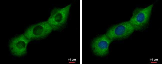 PABP Antibody (PA5-29883) in Immunofluorescence