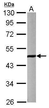 HDAC8 Antibody (PA5-29885) in Western Blot