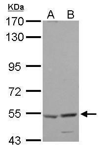 HARS Antibody (PA5-29895) in Western Blot