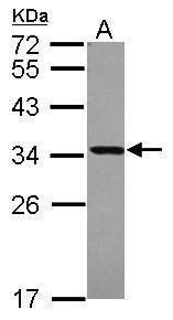 V-ATPase E1 Antibody (PA5-29899) in Western Blot
