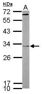 FHL2 Antibody (PA5-29906) in Western Blot