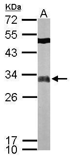 FHL2 Antibody (PA5-29907) in Western Blot