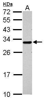 GCLM Antibody (PA5-29908) in Western Blot