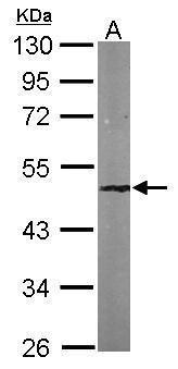 SNF5 Antibody (PA5-29918)