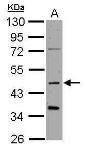 Synaptotagmin 1 Antibody (PA5-29922) in Western Blot