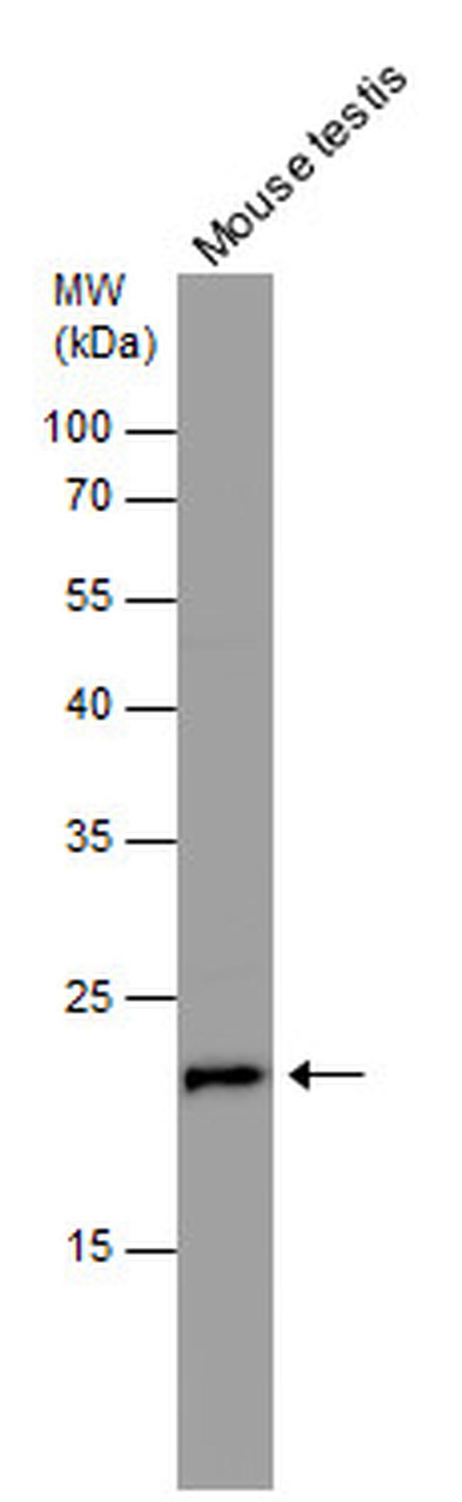 RAN Antibody (PA5-29926) in Western Blot