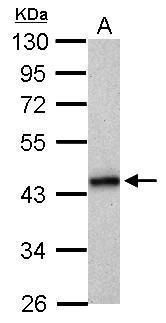 HLA-B Antibody (PA5-29929) in Western Blot