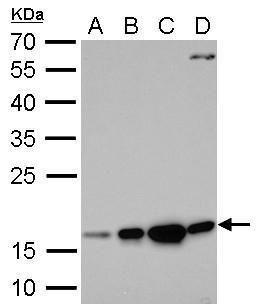 Destrin Antibody (PA5-29933)