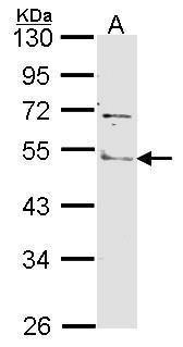 ANGPTL4 Antibody (PA5-29944) in Western Blot