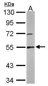 GSR Antibody (PA5-29945) in Western Blot