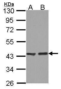 ACAA1 Antibody (PA5-29956) in Western Blot