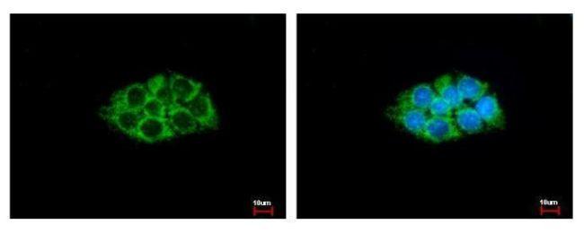 ACAA1 Antibody (PA5-29957)