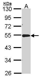 Acid Phosphatase 2 Antibody (PA5-29961) in Western Blot