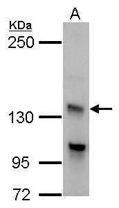 Adenylate Cyclase 7 Antibody (PA5-29963) in Western Blot