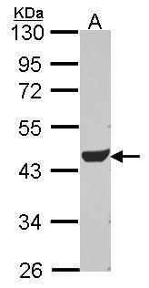ADSL Antibody (PA5-29964) in Western Blot