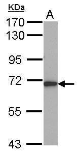 ALAS1 Antibody (PA5-29966)