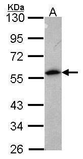 Annexin A11 Antibody (PA5-29968) in Western Blot