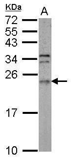 ARL3 Antibody (PA5-29971)